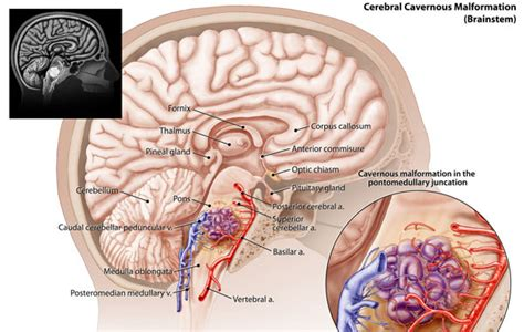 vasi cavernosi angioma cavernoso cause sintomi e cure akoa