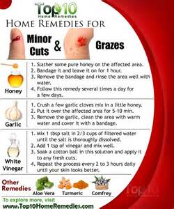 home remedies for home remedies for minor cuts and grazes top 10 home remedies