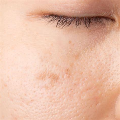 laser pigmentation removal adelaide laser skin amp vein clinic