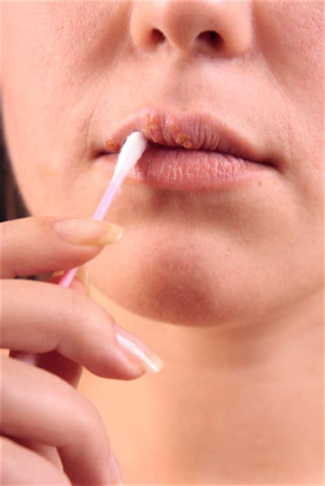 Treats Lip Care Perawatan Bibir De chapped remedies treat cracked and