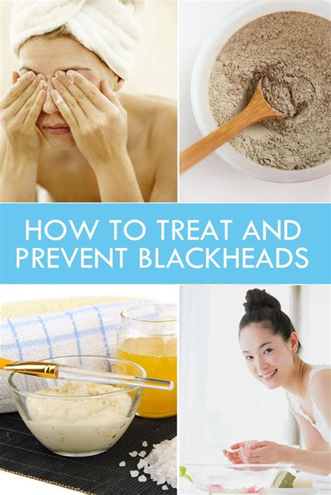 how to remove or prevent black dots ingrown hairs 1000 ideas about how to prevent blackheads on pinterest