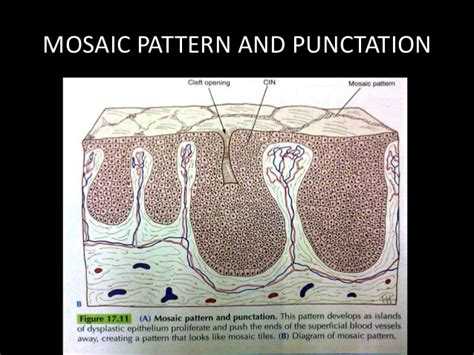 mosaic pattern in colposcopy cervical intraepithelial neoplasia