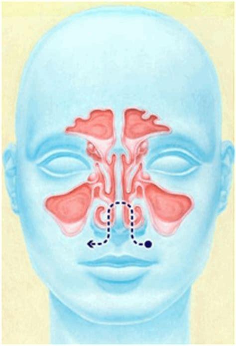 naso chiuso e mal di testa naso chiuso e denti studio dentista genova dr piccardo