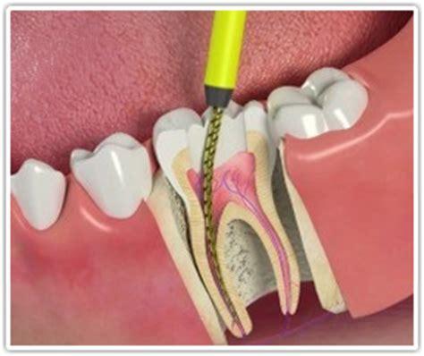 dentist wilmington nc dentist carolina beach nc