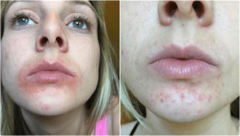 Pelembab Bibir Eos sudah tahu pelembap bibir terkenal ini berbahaya buat