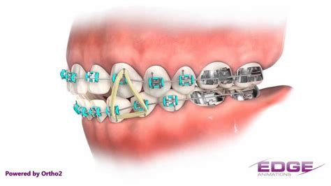 colored bans clear braces with colored bands surgery pics