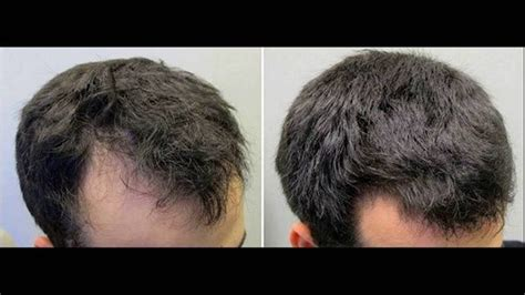 hair style temple bald spots how can one increase the density of hair on his head quora