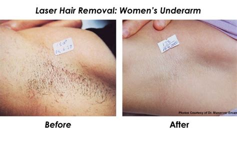 Best Type Of Laser Hair Removal by 17 Best Images About Laser Hair Removal For All Skin Types