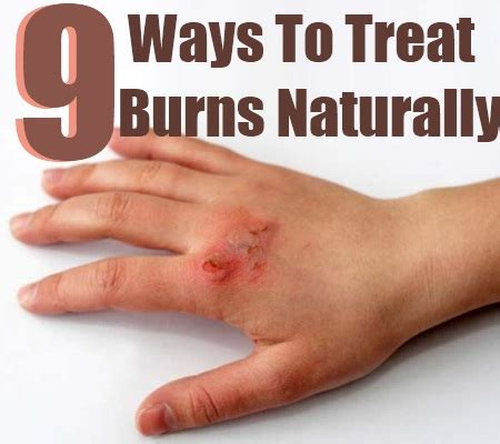 top 9 ways to treat burns naturally find home remedy