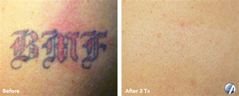 tattoo removal michigan bmf 600c arbor laser removal