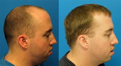 correct haircut transplant dr blount hair restoration scam new style for 2016 2017