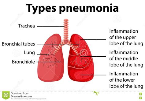 diagram showing types pneumonia stock vector image 73941638