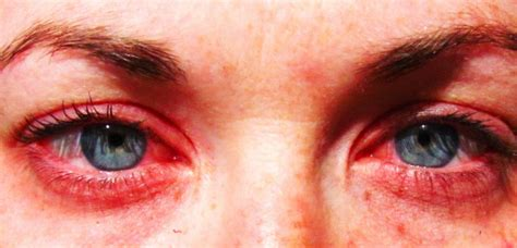 eye allergies allergic conjunctivitis royal oak eye care
