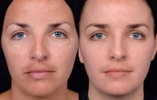 home chemical peel chemical peels castleknock cosmetic clinic dublin