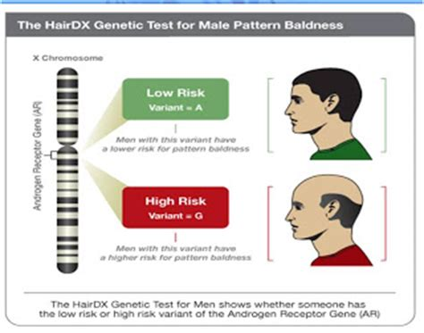 male pattern baldness test good bye hair loss hair loss tips advice online hair