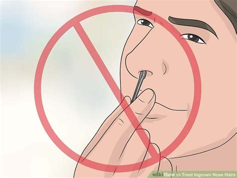 13 Tips On How To Treat In Grown Hair by How To Treat Ingrown Nose Hairs 11 Steps With Pictures