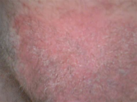 rash on groin what is causing this rash in my groin area see photo it