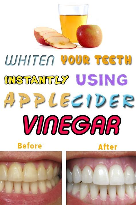 How To Detox After Dental Work by 17 Best Ideas About Apple Cider Vinegar On