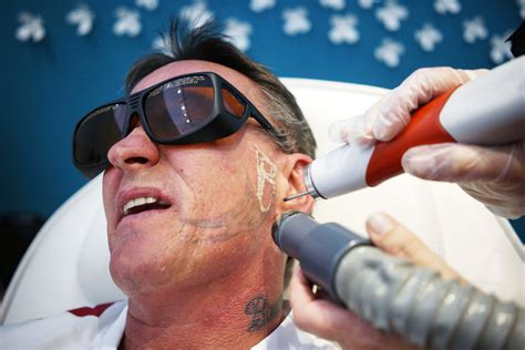 tattoo removal face what were you inking inside a removal clinic