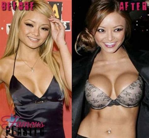 breast implants surgery all about celebrity breast celebrities before and after breast implants damn cool