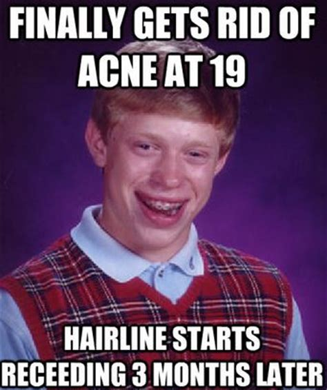 Receding Hairline Meme - 5 common acne myths busted enhance what s yours