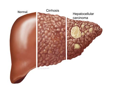 on world cirrhosis day 10 points on the liver diseases