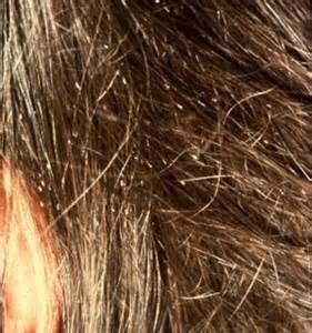 what color are nits pictures of lice