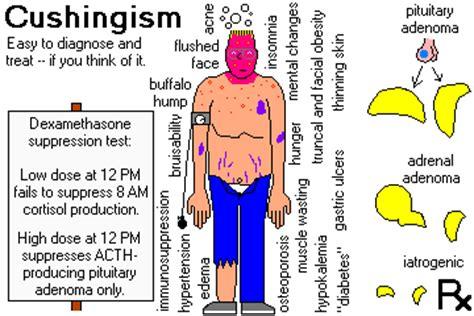 cusions disease cushing disease www pixshark com images galleries with