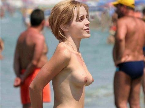 Emma Watson Nude Vacation Pics Leaked