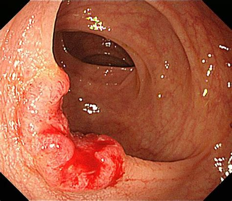carcinoma portio file colonic carcinoma of rectosigmoid portion2 jpg