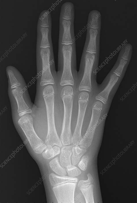 Normal hand of 13 year old, X-ray - Stock Image - C039