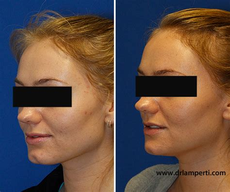 Remedy Fr Cleft Chin | how to remove a cleft chin seattle facial plastic