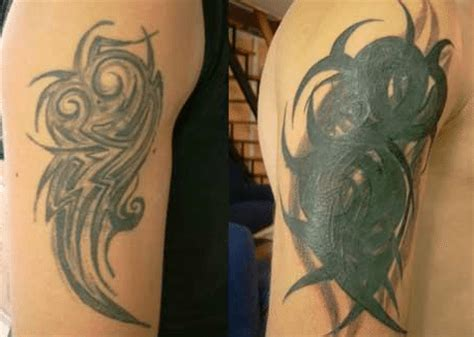 does insurance cover tattoo removal why you to try regen laser removal regen laser