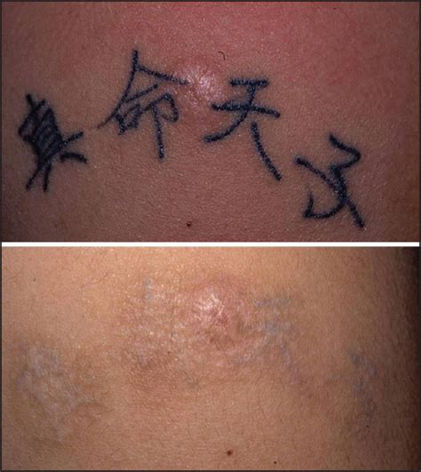 tattoo removal moncton 100 immediate tattoo removal diamonds don u0027t