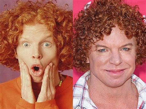 carrot top scott thompson plastic surgery  ugly