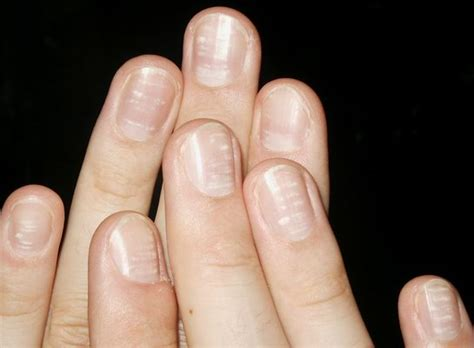 Finger Nails by Nail Disorders Your Finger Nails