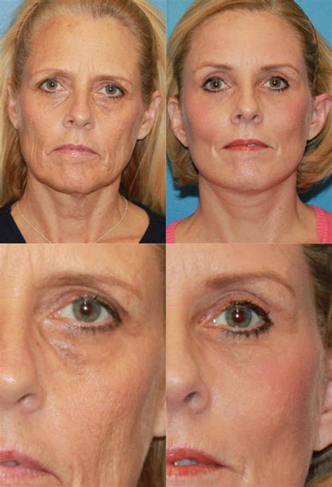 forehead surgery before and after brow lift surgery information brow lift before and after