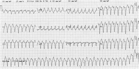 Search Vt Ventricular Tachycardia Monomorphic Litfl Library