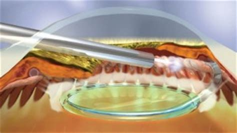 diode cyclophotocoagulation diode cyclophotocoagulation cpc glaucoma associates of