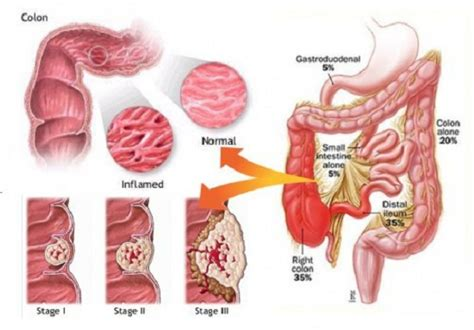Blood In Stool Diarrhea by If You See Blood In Your You Should Read This