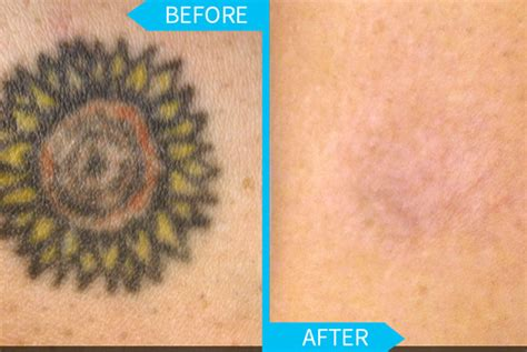 tattoo removal dermatologist tips to quicken the removal process universal