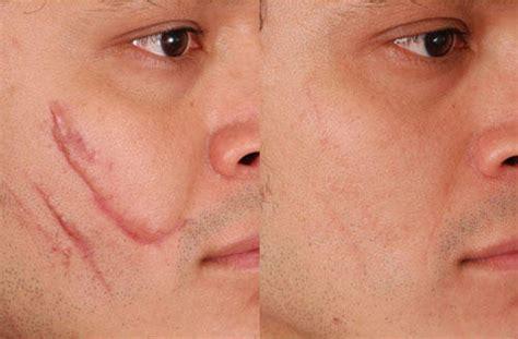 fractional laser for scars