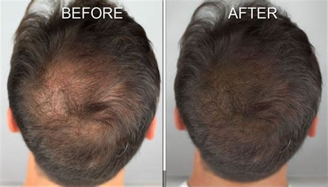 hairstyles to cover thinning hair on scalp hairstyles to cover up bald spots hairstyles