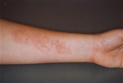 henna tattoo nebenwirkungen sind pflanzenfarbstoff t 228 towierungen behandelbar und