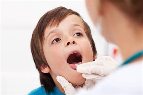 wann mandeln entfernen tonsillotomie wenn die mandeln entfernt werden m 252 ssen