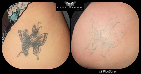 louisiana laser tattoo removal change is not regret laser removal