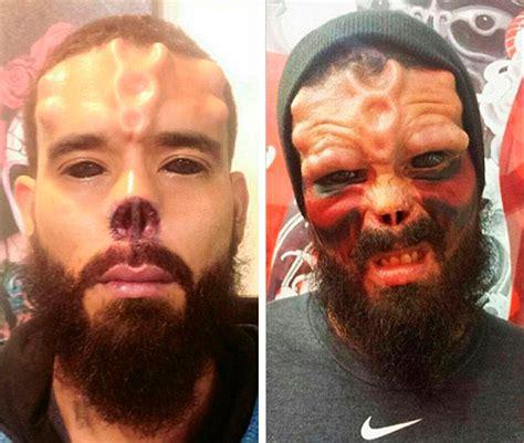 un hombre se opera la nariz y se tat 250 a la cara para