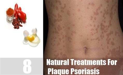 8 Best Home Made Treatments by 8 Treatments For Plaque Psoriasis How To Treat