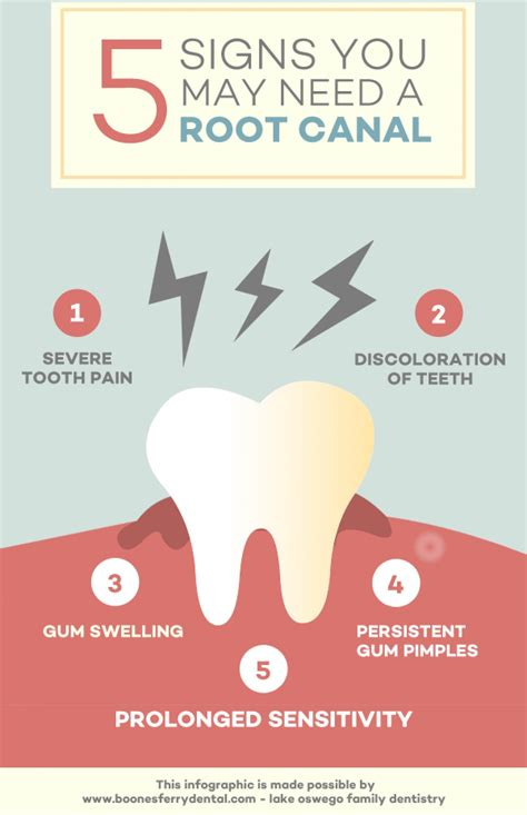 How Do You If You Need A New Mattress by 5 Signs You Might Need A Root Canal An Escondido Dentist