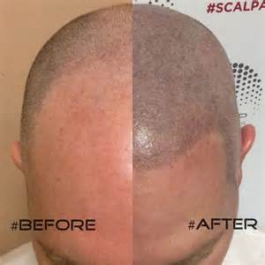pics of scalp micropigmentation on with hair scalp micropigmentation hair tattoos in phoenix